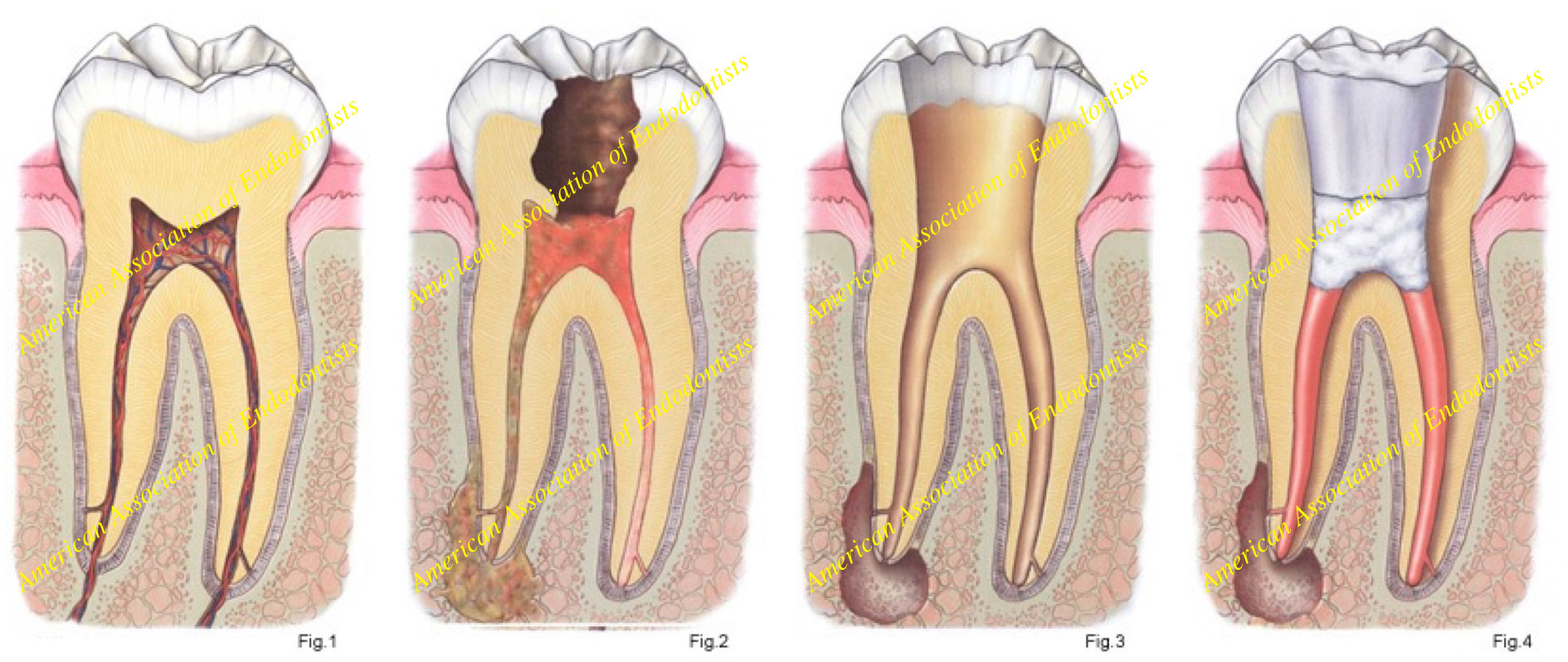 What is a root canal therapy - Studio Castellucci