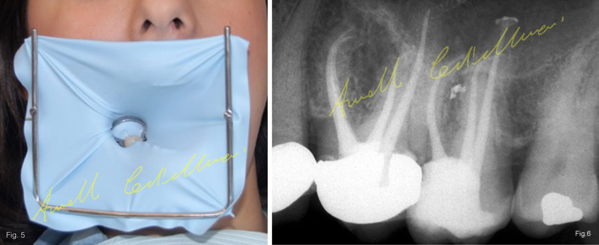 an endodontic treatment may be quite lengthy especially for molars because depending on the case it might require one or more appointments
